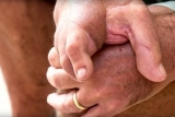 Чоловік обзавівся рукою з пальцями ніг